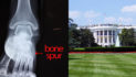 Bone Spur Attack Forces President To Abandon Gun Legislation